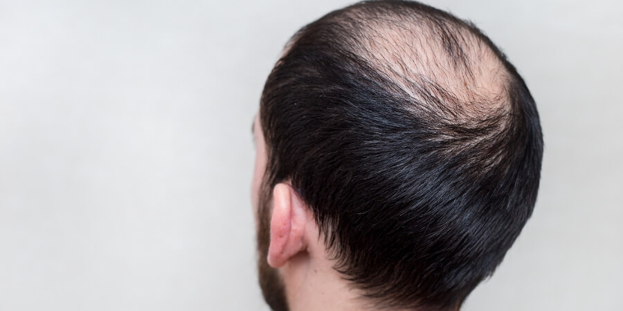 Hair Loss Can Hurt