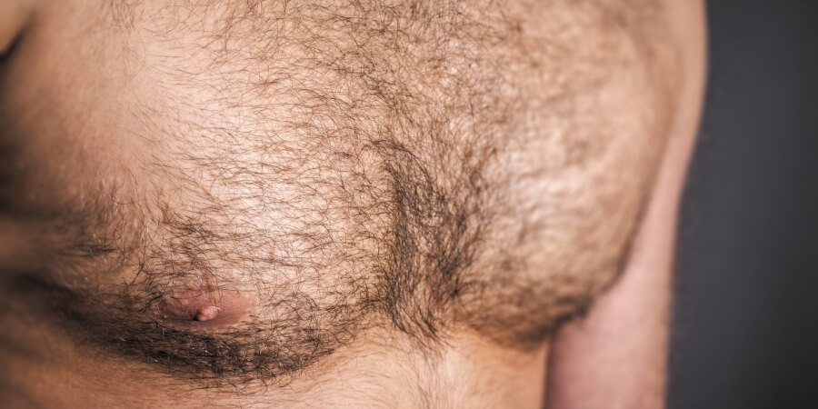 Getting A Chest Hair Transplant