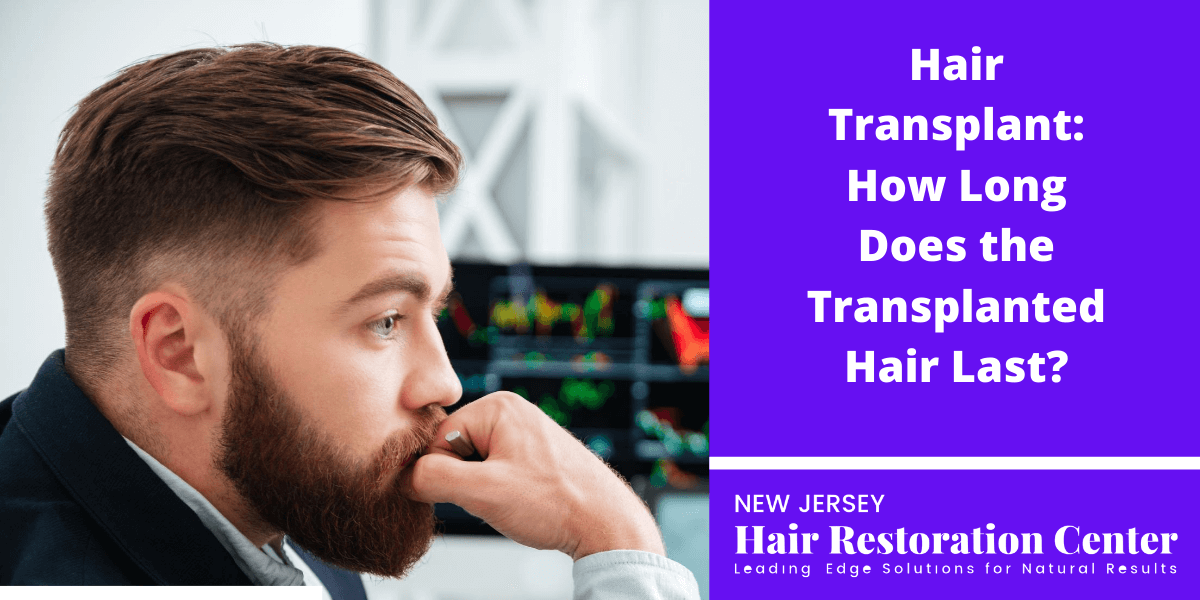 Hair Transplant: How Long Does the Transplanted Hair Last?
