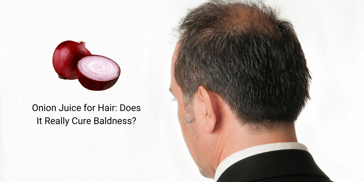 Onion Juice for Hair: Does It Really Cure Baldness?