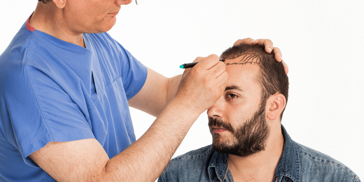 All You Need To Know on Stem Cell Hair Transplant