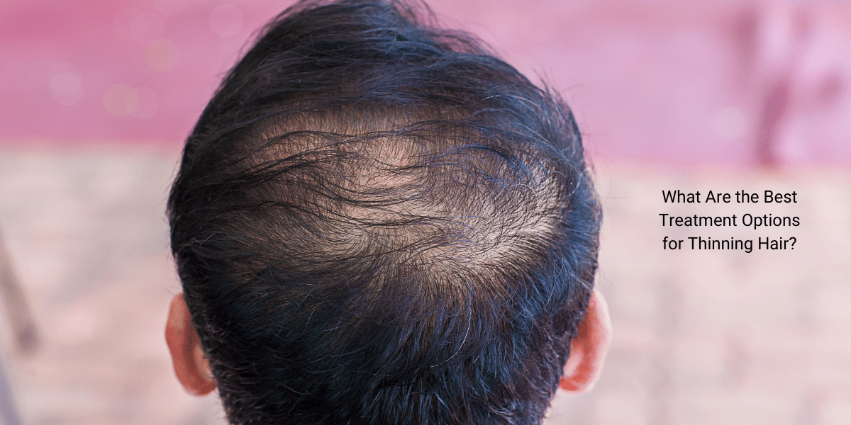 What Are the Best Treatment Options for Thinning Hair?